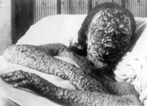 The-Blackpox1